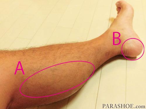 足底腱膜炎(足底筋膜炎)が発症した足