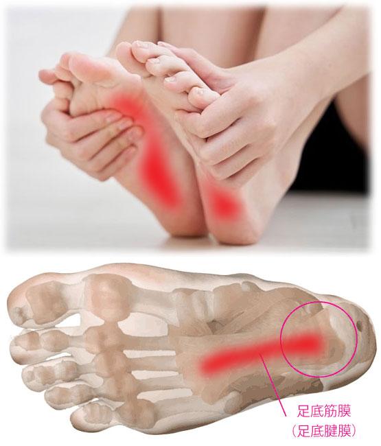 足底腱膜炎(そくていけんまくえん)・足底筋膜炎(そくていきんまくえん)