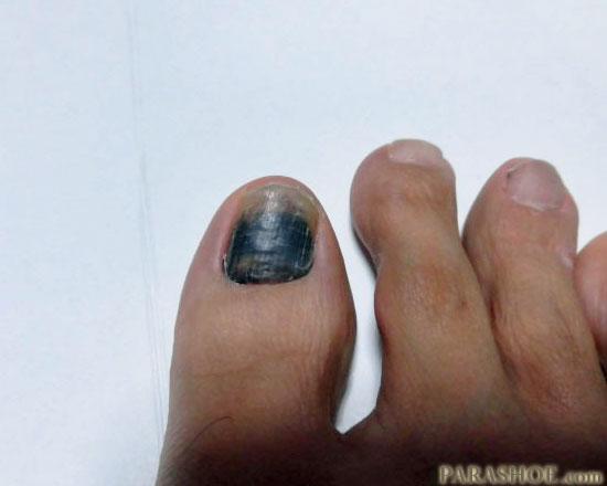 発症一ヶ月後の爪下血腫