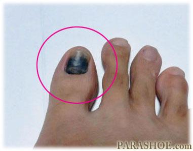 爪下血腫(そうかけっしゅ)を発症した足の親指(母趾)