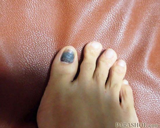 発症二ヶ月後の爪下血腫