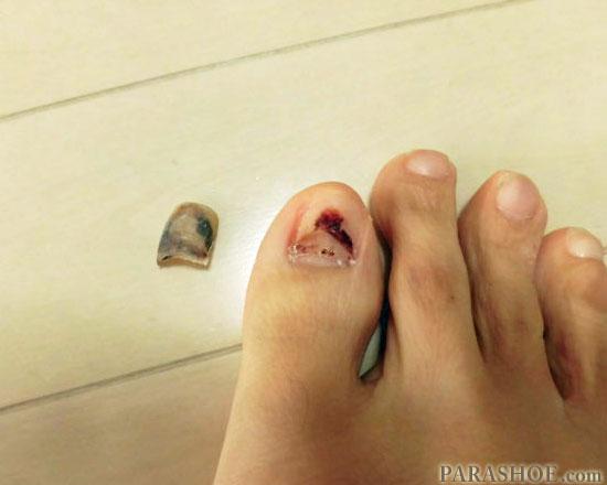 発症4ヶ月後の爪下血腫
