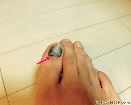 発症3ヶ月後の爪下血腫