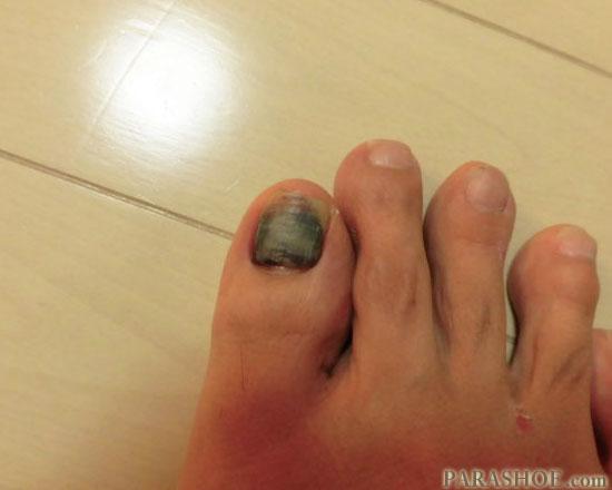 発症2ヶ月半後の爪下血腫