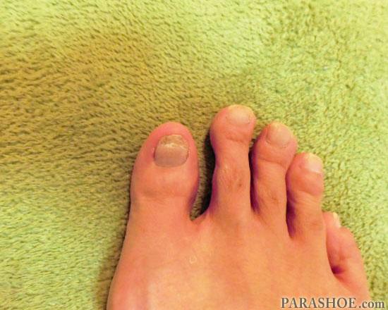発症8ヶ月後の爪下血腫
