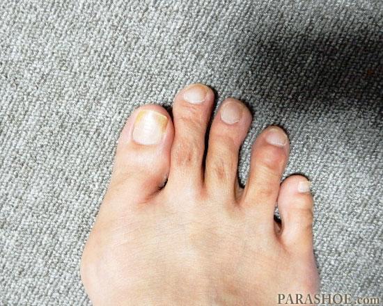 完治(治癒)した爪下血腫