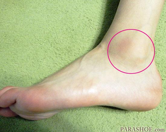 足首の捻挫 踝周辺の写真