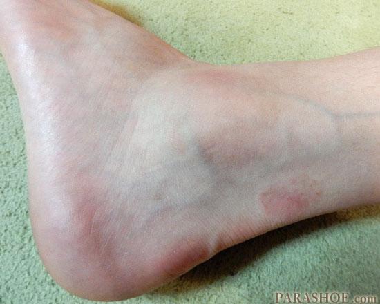 足首の捻挫 腫れた踝