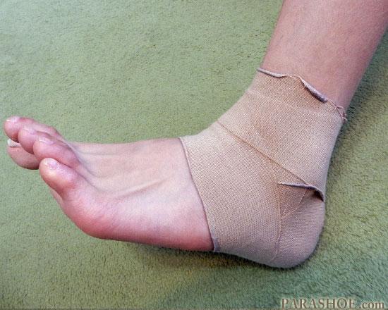 整形外科でテーピングされた足首捻挫