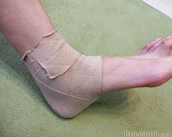 整形外科でテーピングされた足首捻挫(内側)